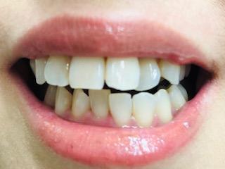 歯科医院でするホワイトニング